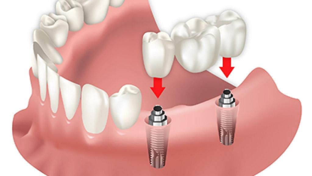 Fabricación aditiva en el sector dental